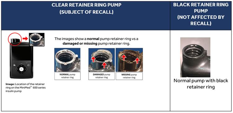 Retainer ring location