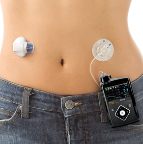 Cgm Deals Medtronic Diabetes